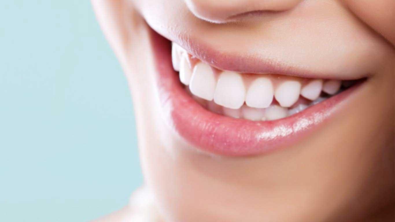 Diş Eti Estetiğinin Sağladığı Avantajlar