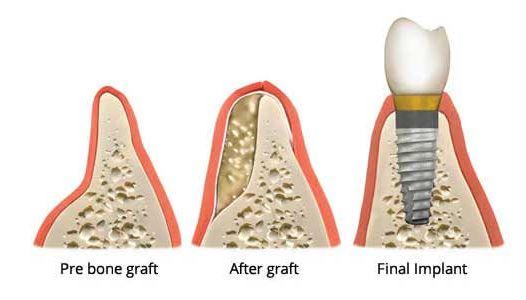 kemik estetiklerinde implant